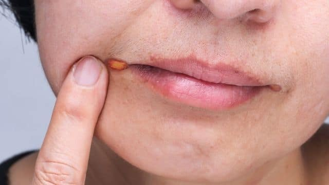 Angular Cheilitis Treatment | Symptoms, 3 Powerful Cure Method